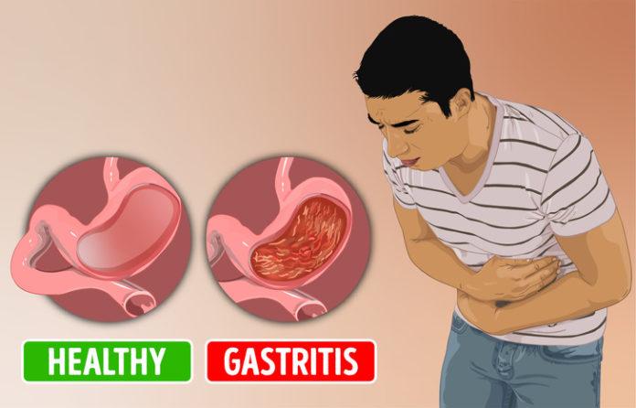 Mos i nënvlerësoni, këto simptoma po ju paralajmërojnë se po vuani nga gastriti